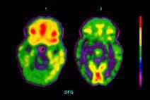 Scansione del cervello tramite PET